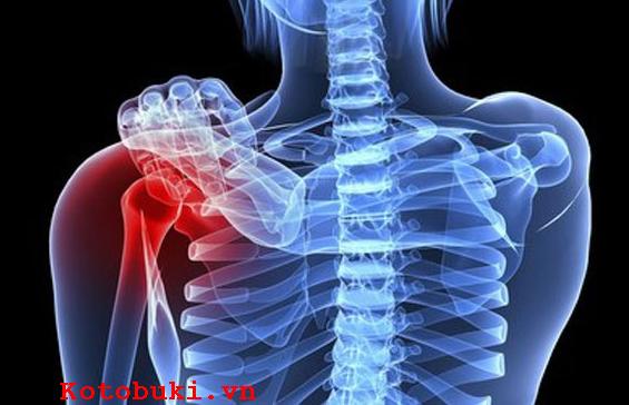Dấu hiệu nhận biết bệnh ung thư xương