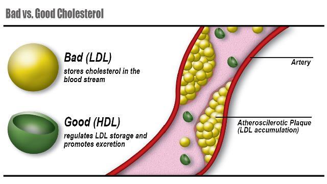 cholesterol tot va xau