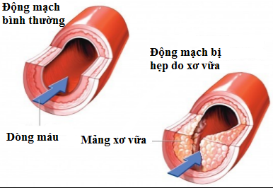 hep-long-dong-mach