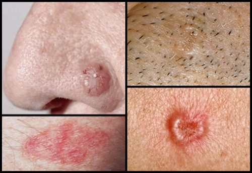 collage_of_basal_cell_carcinoma