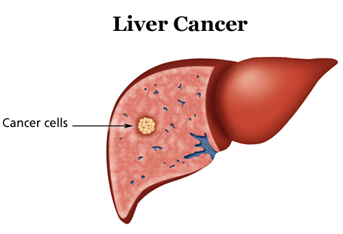 liver-cancer-test-in-india-medifee