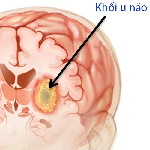 ung-thu-nao